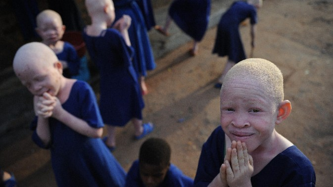fueled-by-superstition-people-are-violently-attacking-albinos-in-tanzania-1409177333